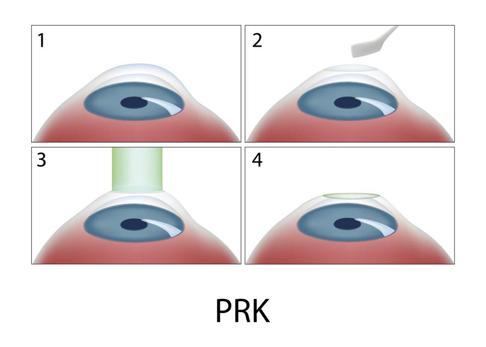 PRK_94216156-FR